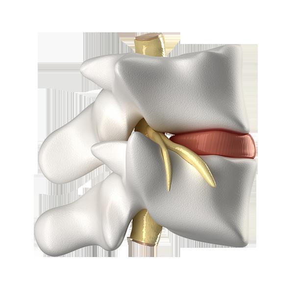 Il disco vertebrale