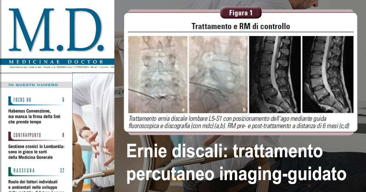 Articolo MD - Ernie discali: trattamento percutaneo imaging-guidato